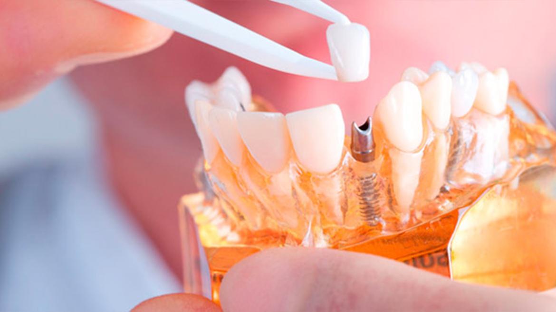 Dental Implants in Assiniboia