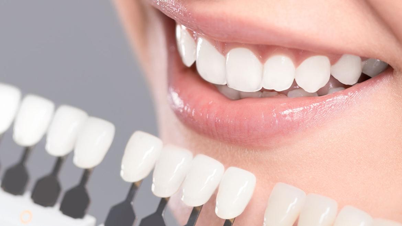 Teeth Whitening in Assiniboia