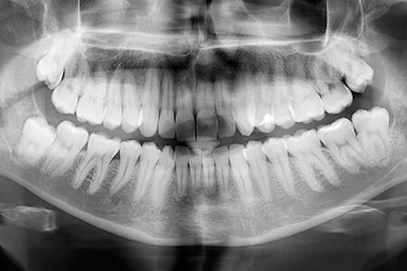 Panoramic X-Rays